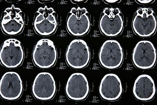 Magnetic resonance of a brain