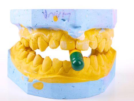 teeth plaster cast