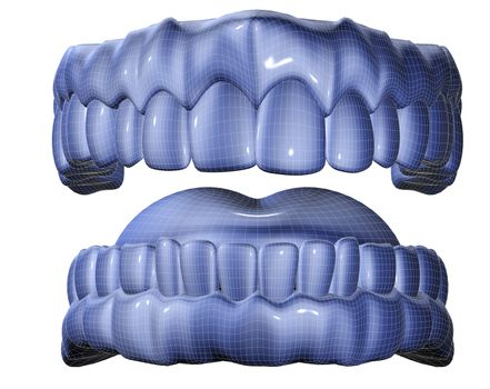 3d image of mesh denture isolated in white