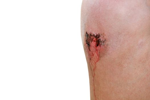 A boy with a bloody scrape on his knee