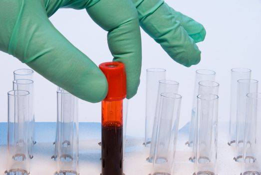 A researcher handling a blood sample in a test tube.