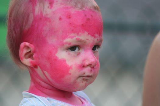 Baby portrait - Chickenpox