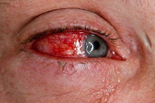 Eye injury - close-up