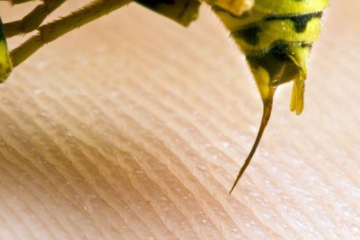 wasp stinging a human