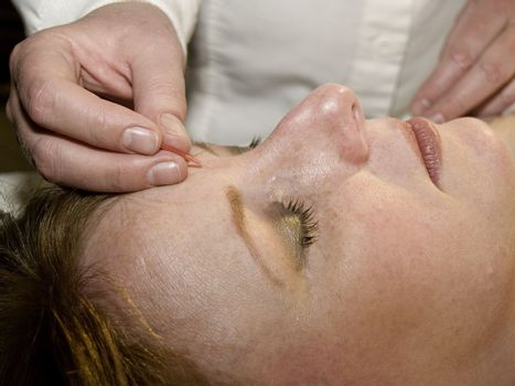 Acupuncture of the face