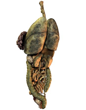with cancer viscera of a female body