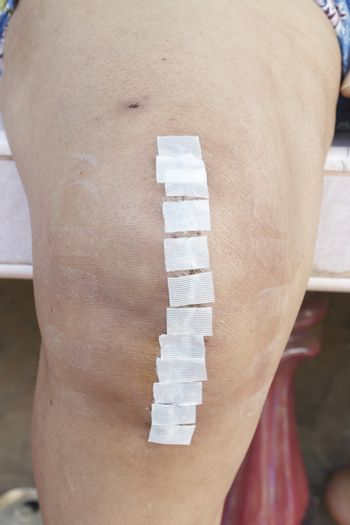 Knee replacement surgery on 60 years old senior woman