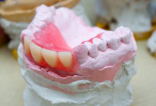 denture  Low DOF