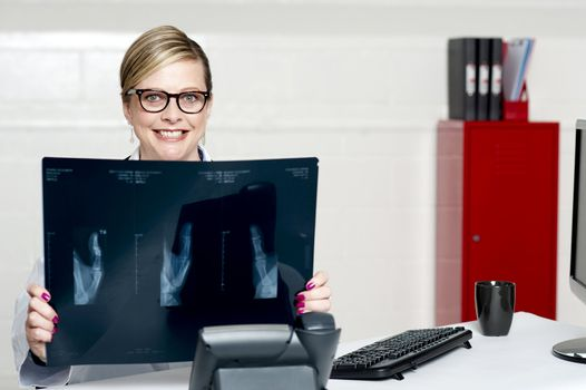Female surgeon showing x-ray reports to camera