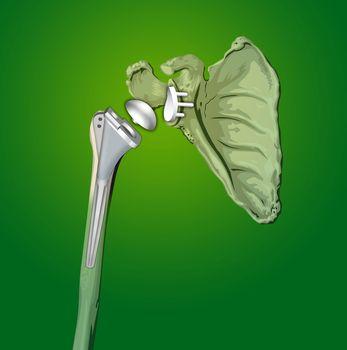prosthesis shoulder