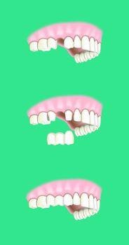 dental prosthesis implantology