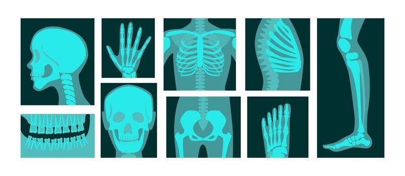 X-ray of human body parts vector illustrations set