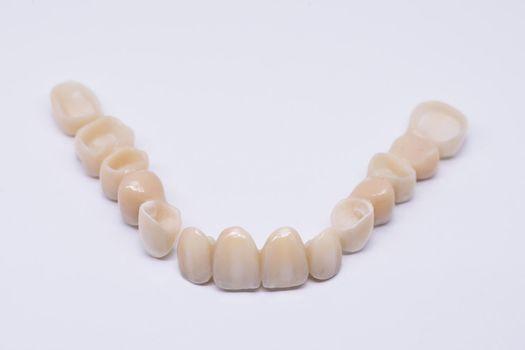 Beautiful dental bridge isolated on wite made of ceramic porcelain. Aesthetic restoration of tooth loss. Ceramic zirconium in final version. Metal Free Ceramic Dental Crowns