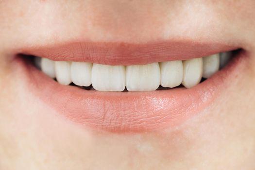 Beautiful female teeth macro zirconium. Closeup smile photo with zirconium artificial teeth. Zirconia bridge with porcelain.