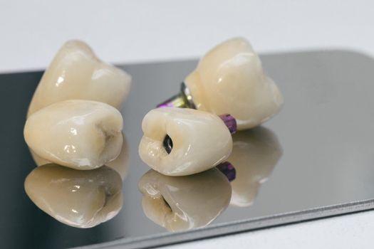 Dental health care. Dental dentist objects. Dental zirconium implants.