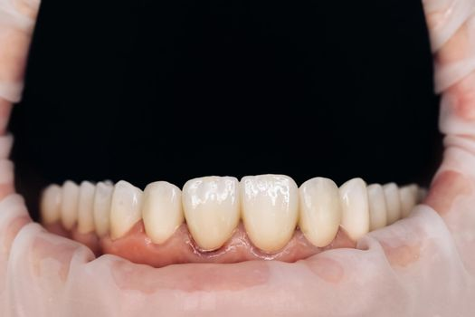 Closeup photo with zirconium artificial teeth. Zirconium crowns. Dental health care. Ceramic zirconium in final version. Staining and glazing. Precision design and high quality materials
