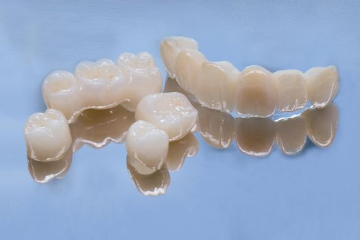 Metal Free Ceramic Dental Crowns. Ceramic zirconium in final version. Staining and glazing. Precision design and high quality materials.