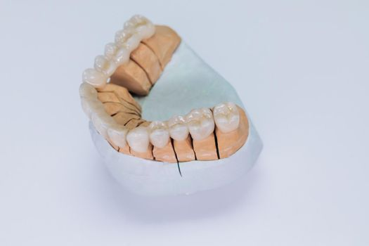 Concept of aesthetic dentistry and design of veneers. Close-up on plaster model of artificial jaw with veneers on the wite background.