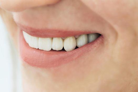 Female teeth macro zirconium. Closeup smile photo with zirconium artificial teeth. Zirconia bridge with porcelain