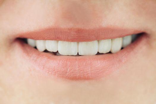 Ceramic crowns of human teeth closeup macro. The concept aesthetic dentistry.