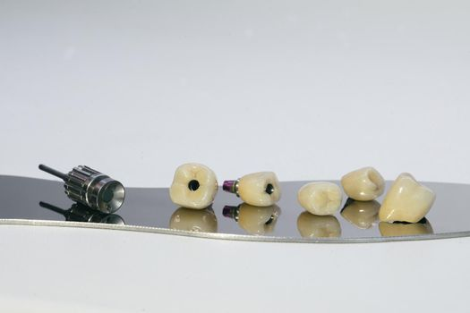 Zirconium crown and zirconium hybrid abutment. Monolithic screw retained zirconium crown on the implant, a screw and a manual key for screwing the crown
