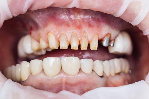 Teeth during dental treatment. Close-up. Dentistry. Patient at the dentist office. Female teeth macro zirconium. Closeup photo with zirconium artificial teeth. Zirconia bridge with porcelain.