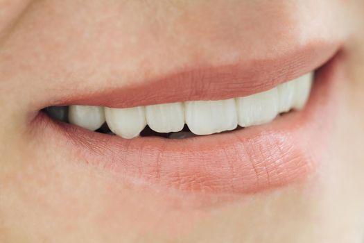 Closeup smile photo with zirconium artificial teeth. Zirconia bridge with porcelain.