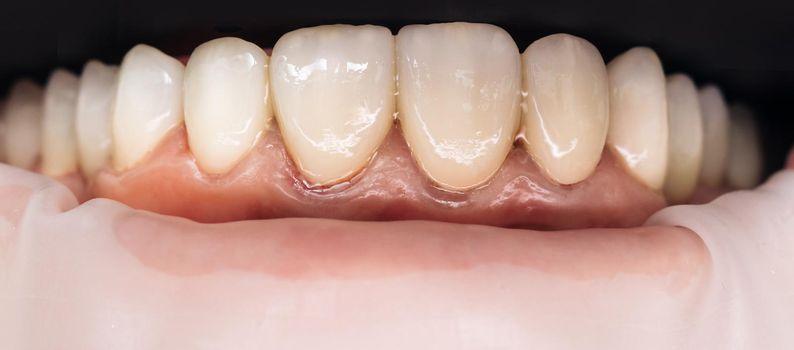 Dental health care. Ceramic zirconium in final version. Precision design and high quality materials. Zirconia bridge with porcelain. Closeup photo with zirconium artificial teeth