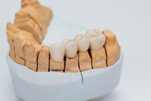 Metal ceramic bridge on a plaster model isolated on white background. Zirconium crowns veneers. Ceramic teeth with the veneers