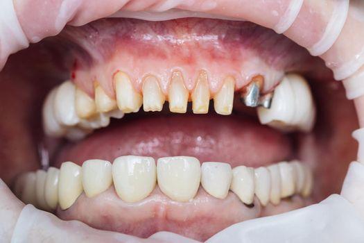 Close-up Dentistry Patient at the dentist office. Female teeth macro zirconium. Closeup photo with zirconium artificial teeth. Zirconia bridge with porcelain