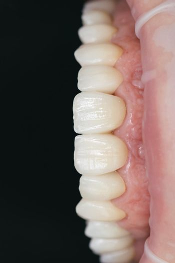 Ceramic zirconium in final version. Staining and glazing. Precision design and high quality materials. Dental health care