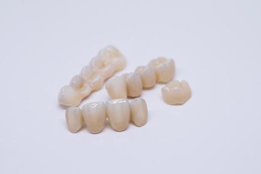 Metal Free Ceramic Dental Crowns. Dental bridge isolated on wite made of ceramic porcelain. Aesthetic restoration of tooth loss. Ceramic zirconium