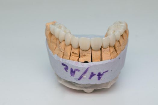 Zirconium crowns. Ceramic teeth with the implant on a plaster model isolated on white background. Ceramic bridge on plaster model.