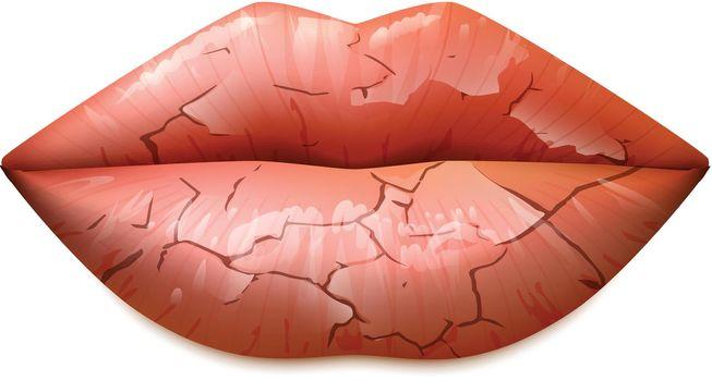 Dry Lips Illustration