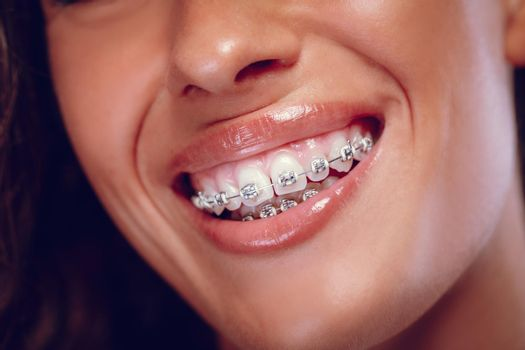 Smile With Braces Too
