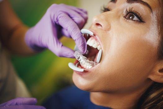 Indirect Bonding Aesthetic Lingual Braces