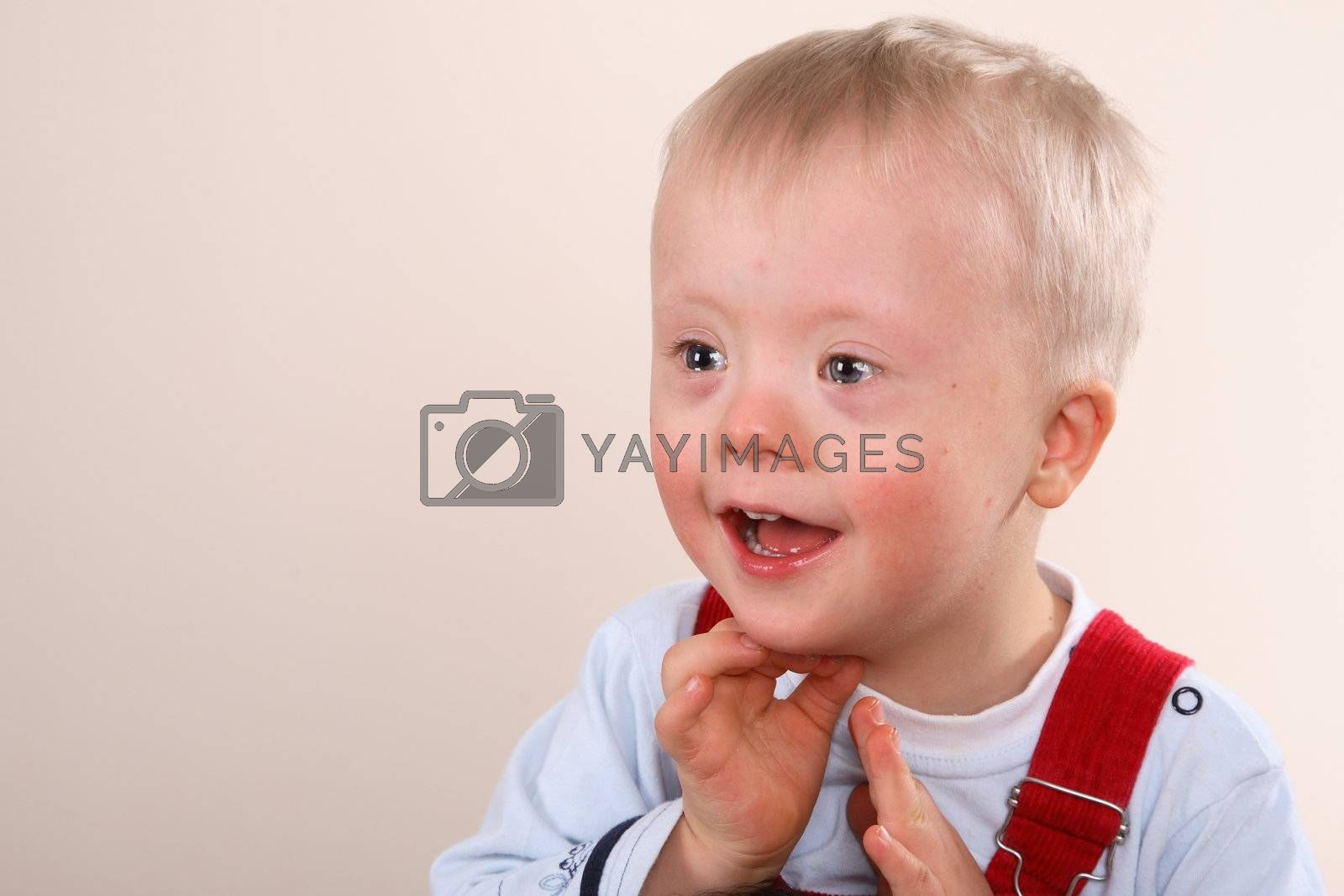 Young Boy with special needs, possibly Downs Syndrome