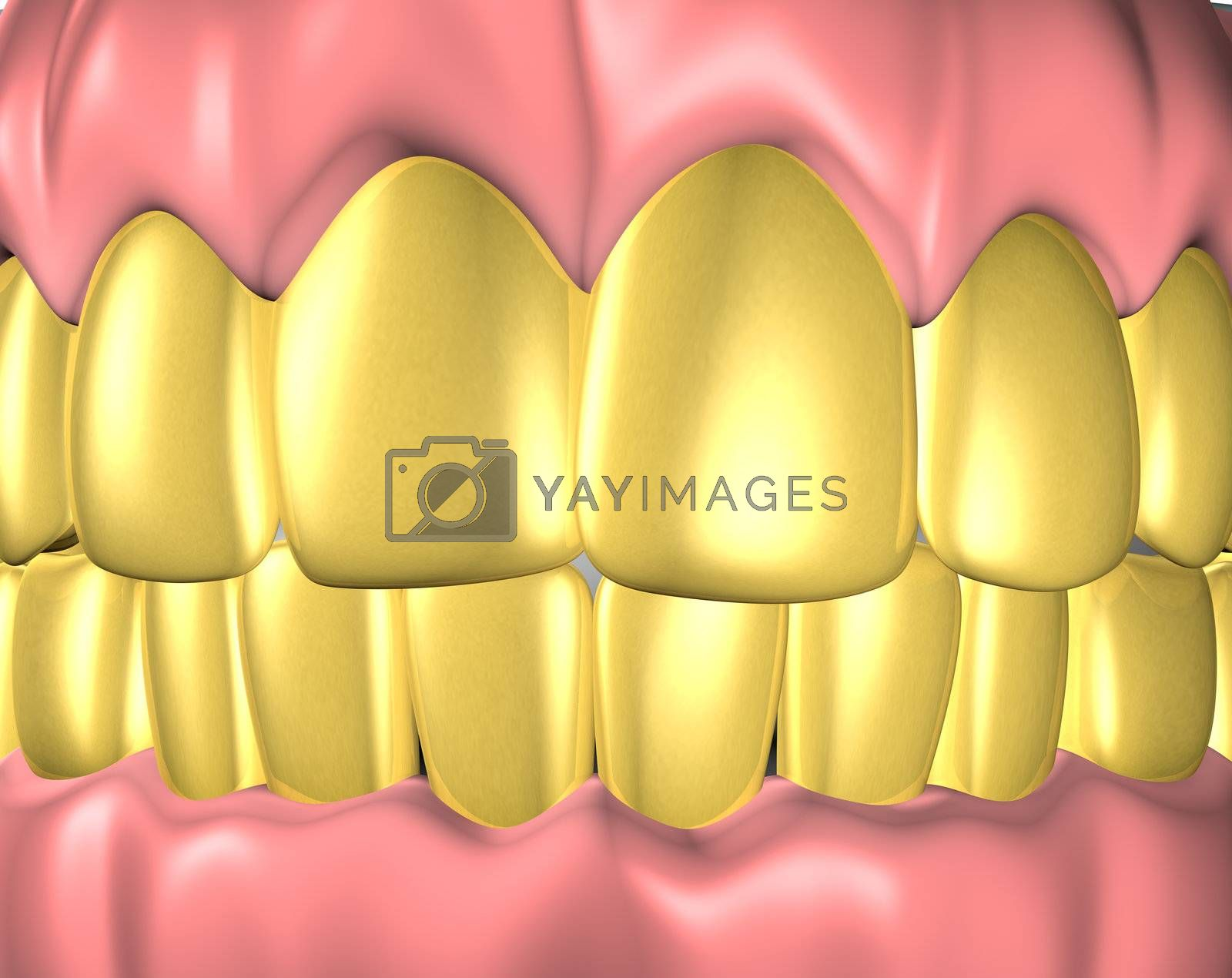 3d image of teeth with gold teeth