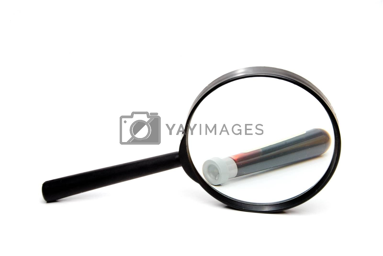 A blood sample being scritinized under a magnifying glass.