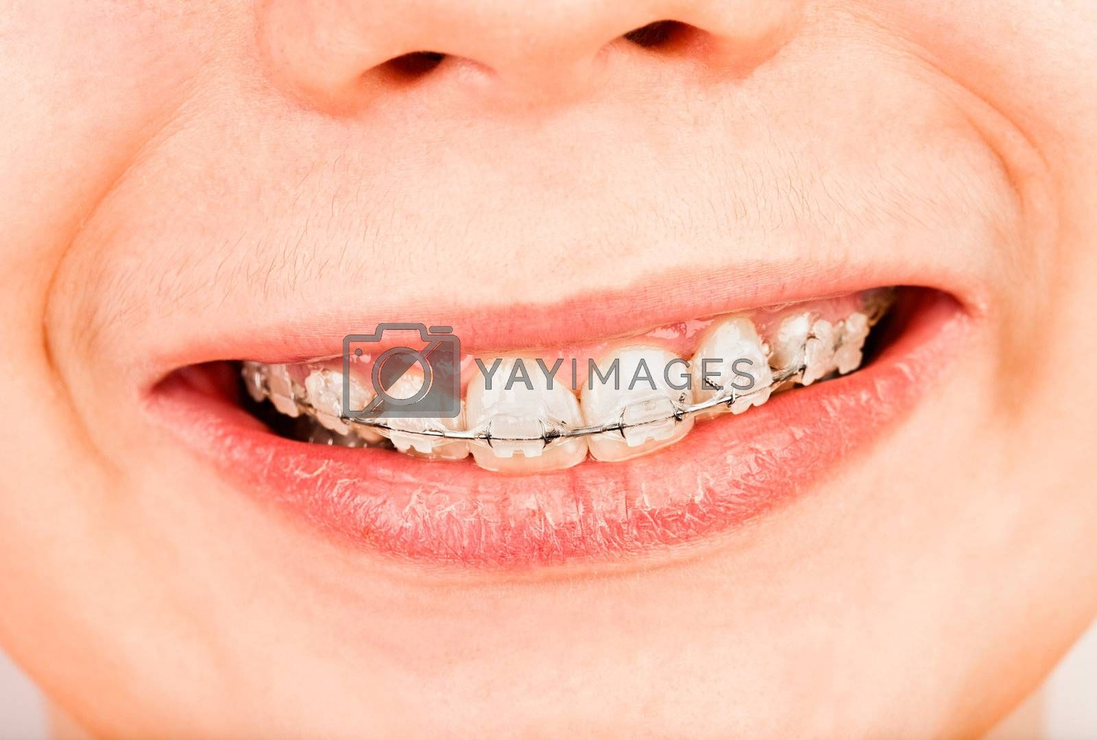 Smile with braces, boy ...