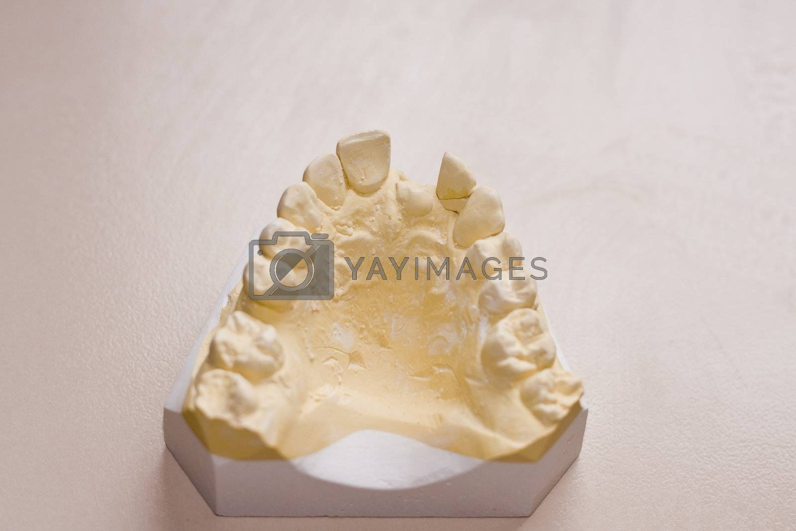 Dental study cast of upper teeth with damaged incisor