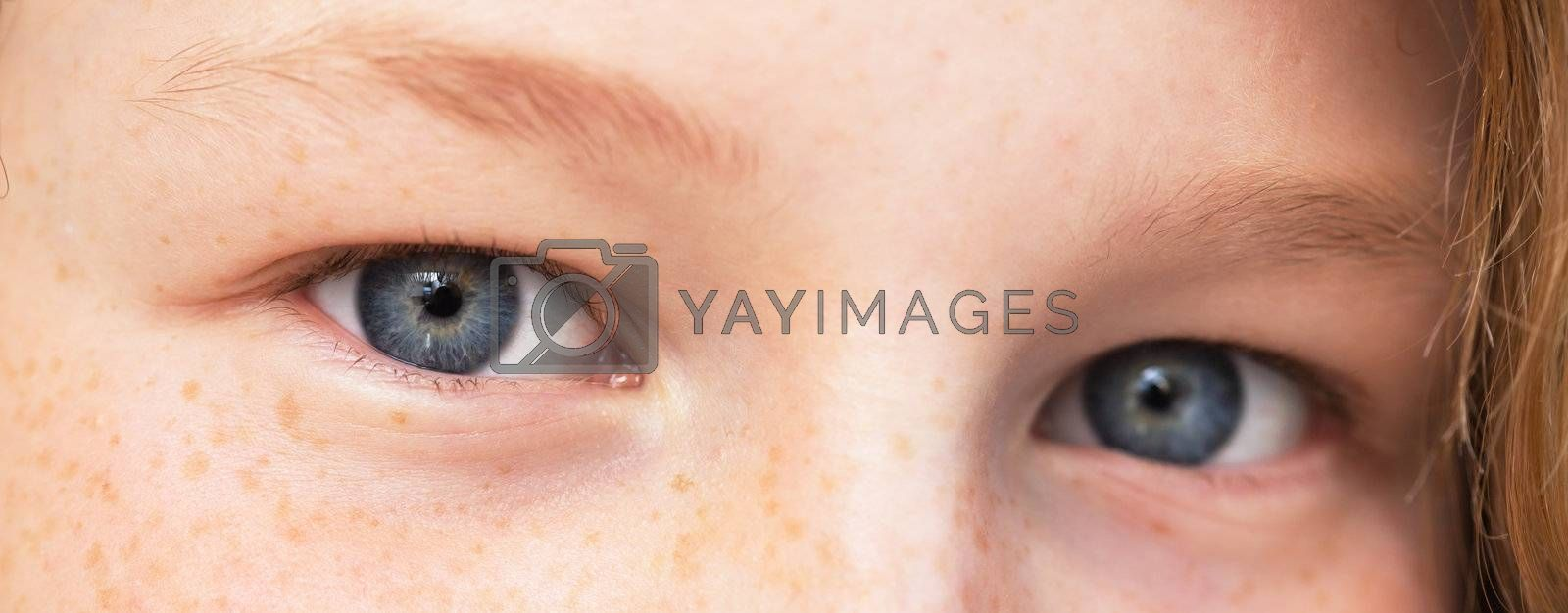 Closeup view of teenager girl's eyes, shallow DOF (only one eye in focus)