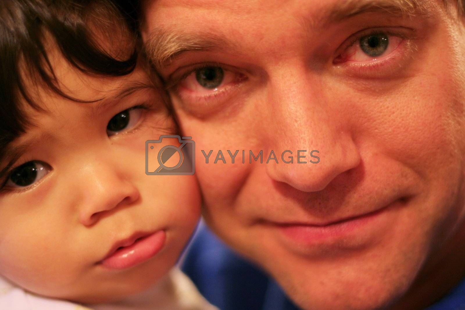 Unhappy baby being comforted by tired father with bloodshot eyes in wee hours of morning.