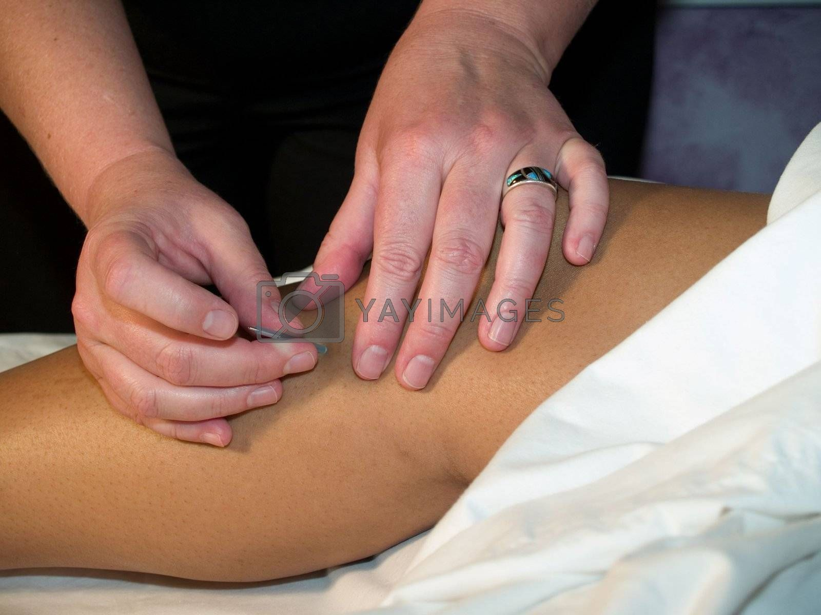 Acupuncture needle being administered to the leg.