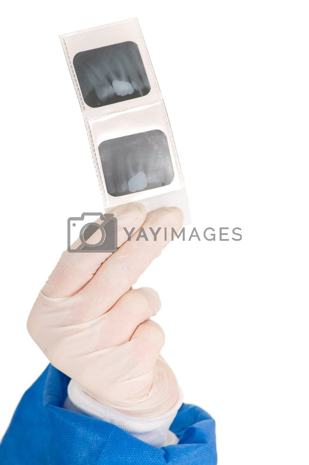 dentist holding dental radiography