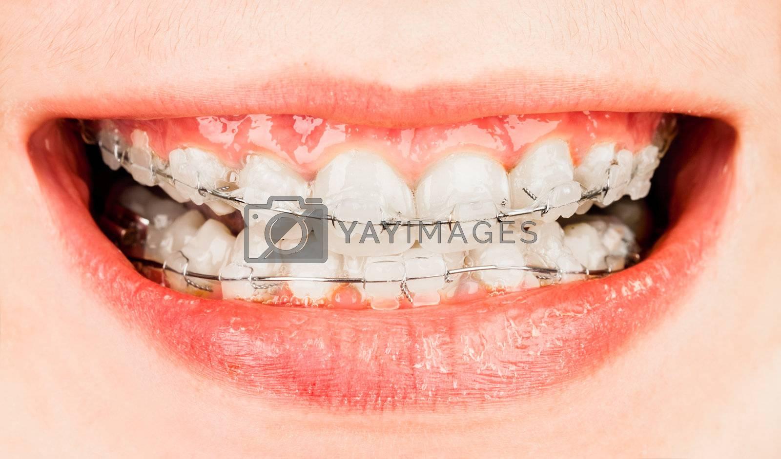 Teeth with braces, boy ...