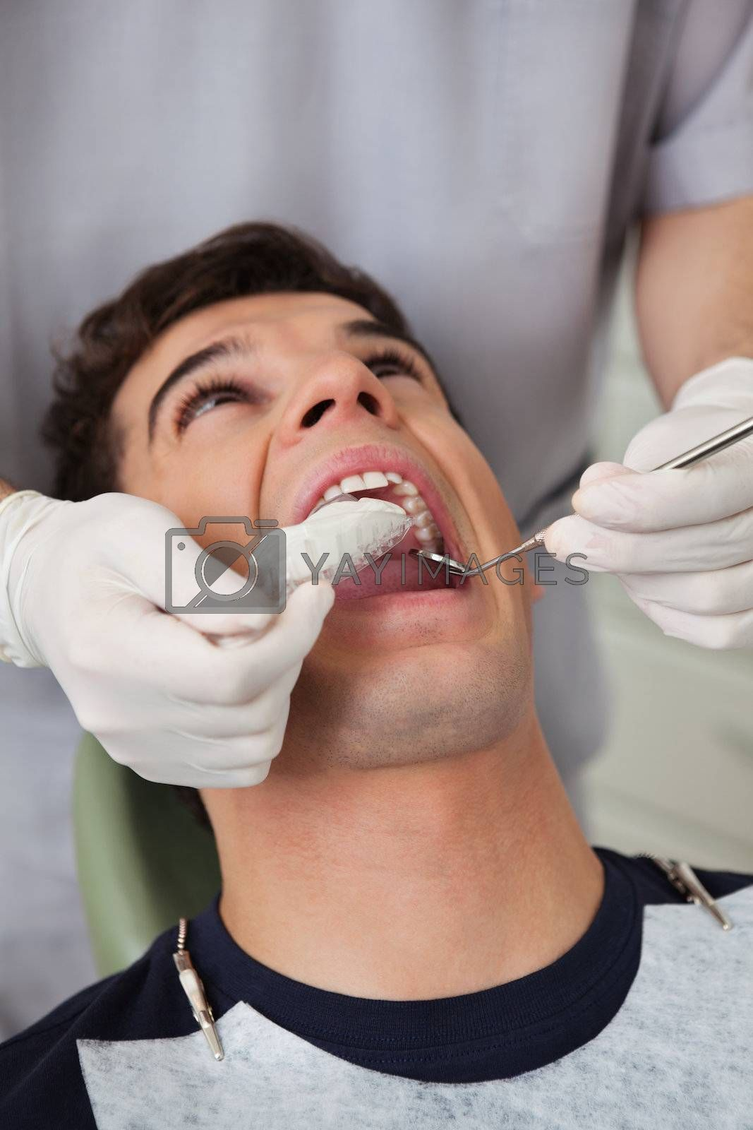 Dentist putting in molds in patients mouth