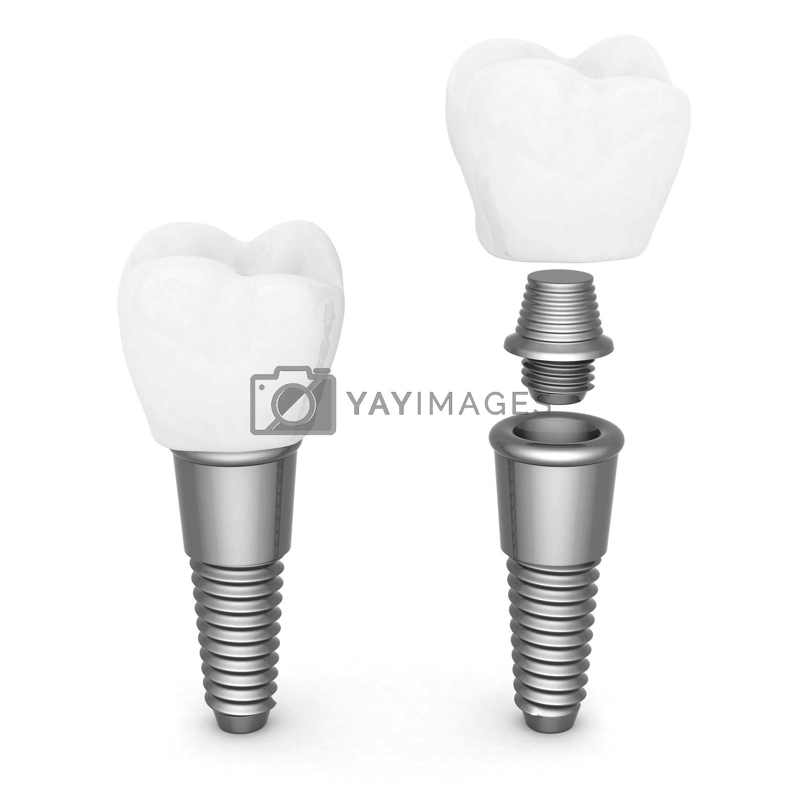 Dental implants by mrgarry