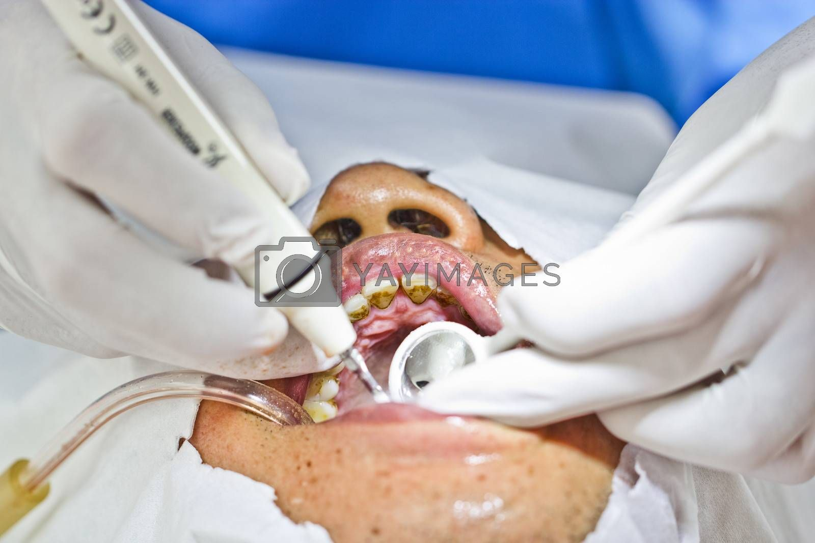 special dental prophylaxis service in rural areas