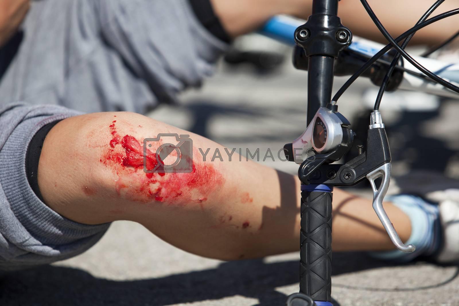 Serious injury on boy's legs